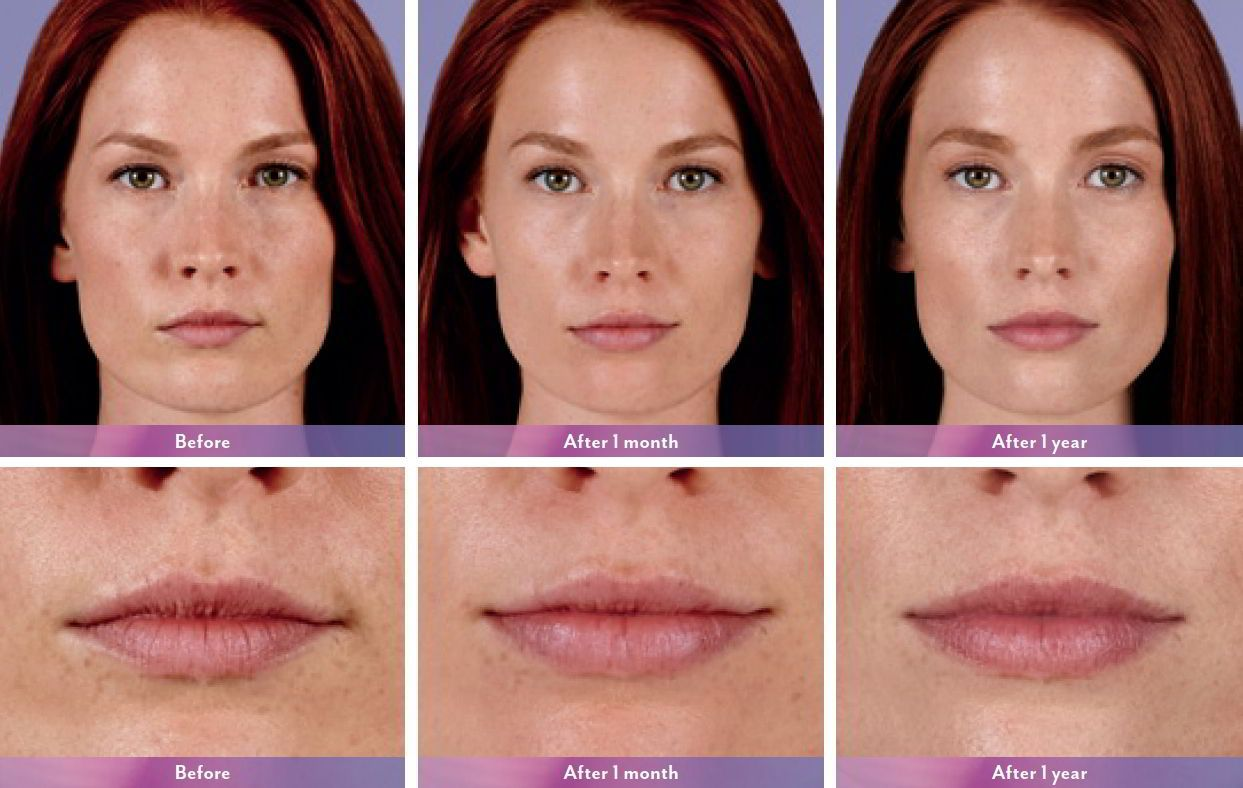 Juvederm Ultra XC Injectable Fillers Before & Afters