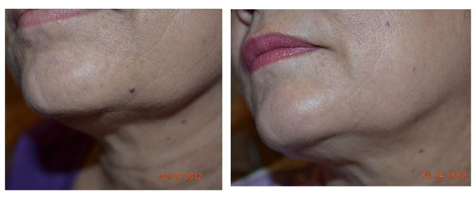 Facial Mole & Tag Removal La Quinta & Rancho Mirage Ca | La