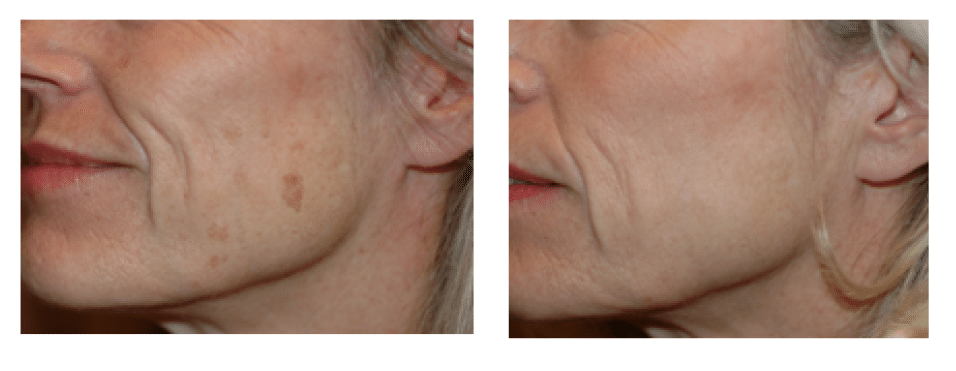 Lutronic Spectra Q-switched Laser La Quinta & Rancho Mirage