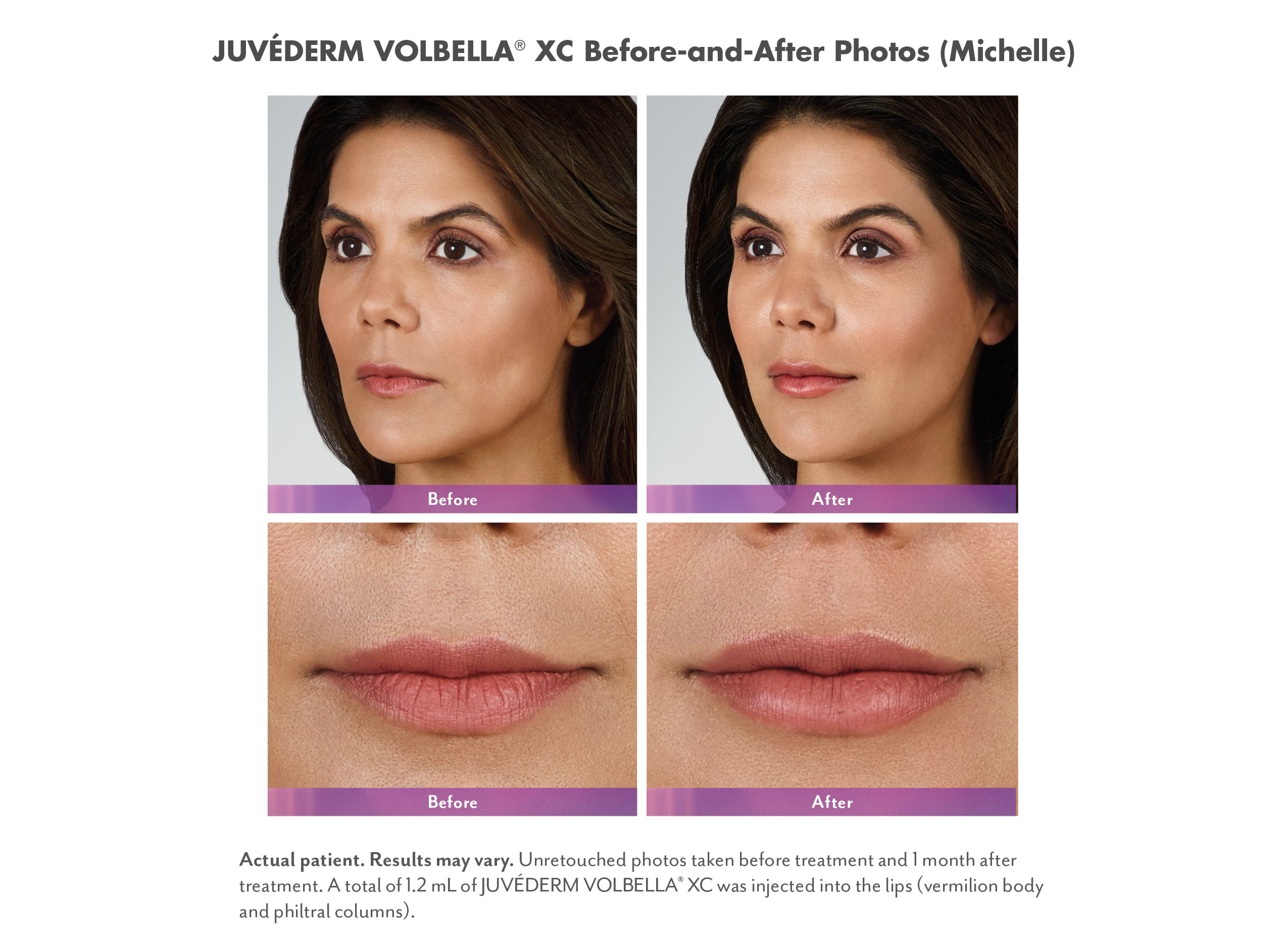 Juvederm Volbella XC Injectable Fillers Before & Afters