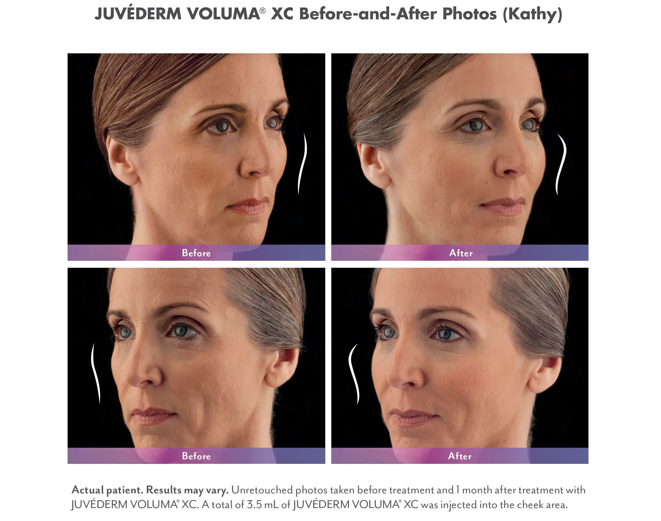 Juvederm Voluma XC Fillers Before & Afters
