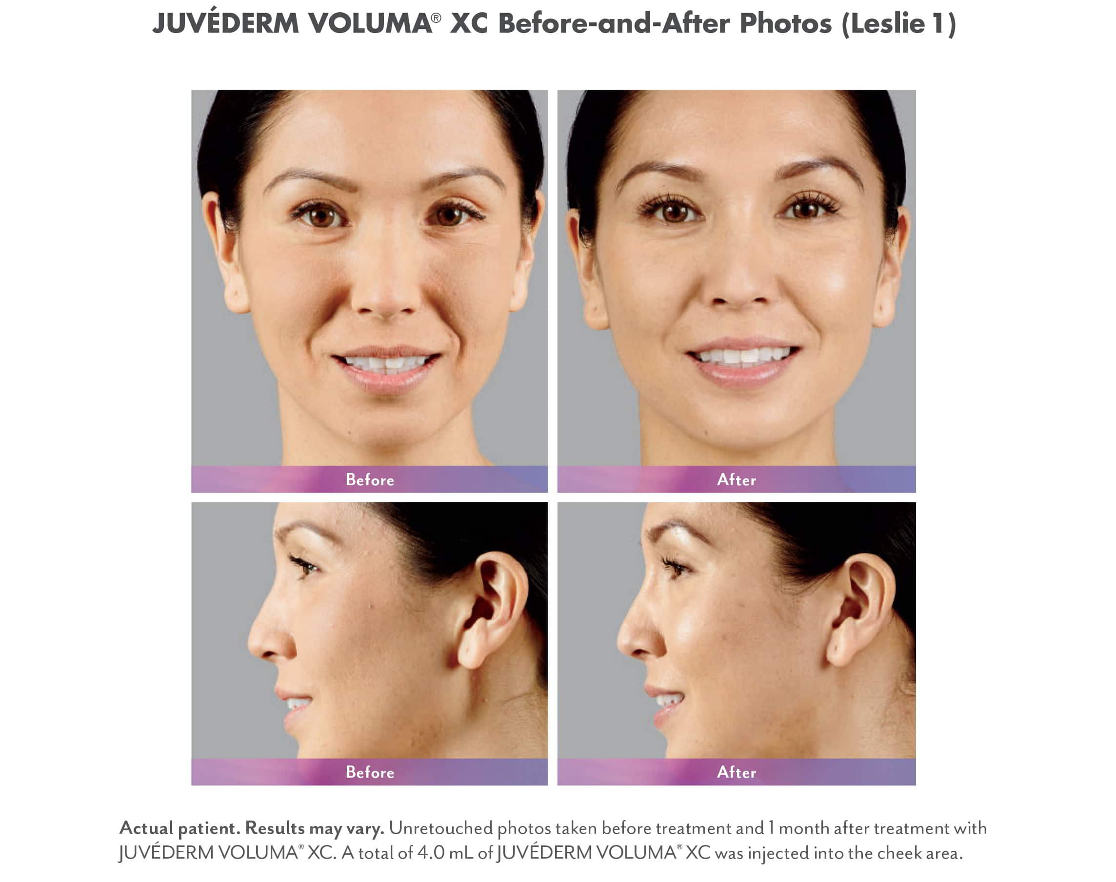 Juvederm Voluma XC Injectable Fillers Before & Afters