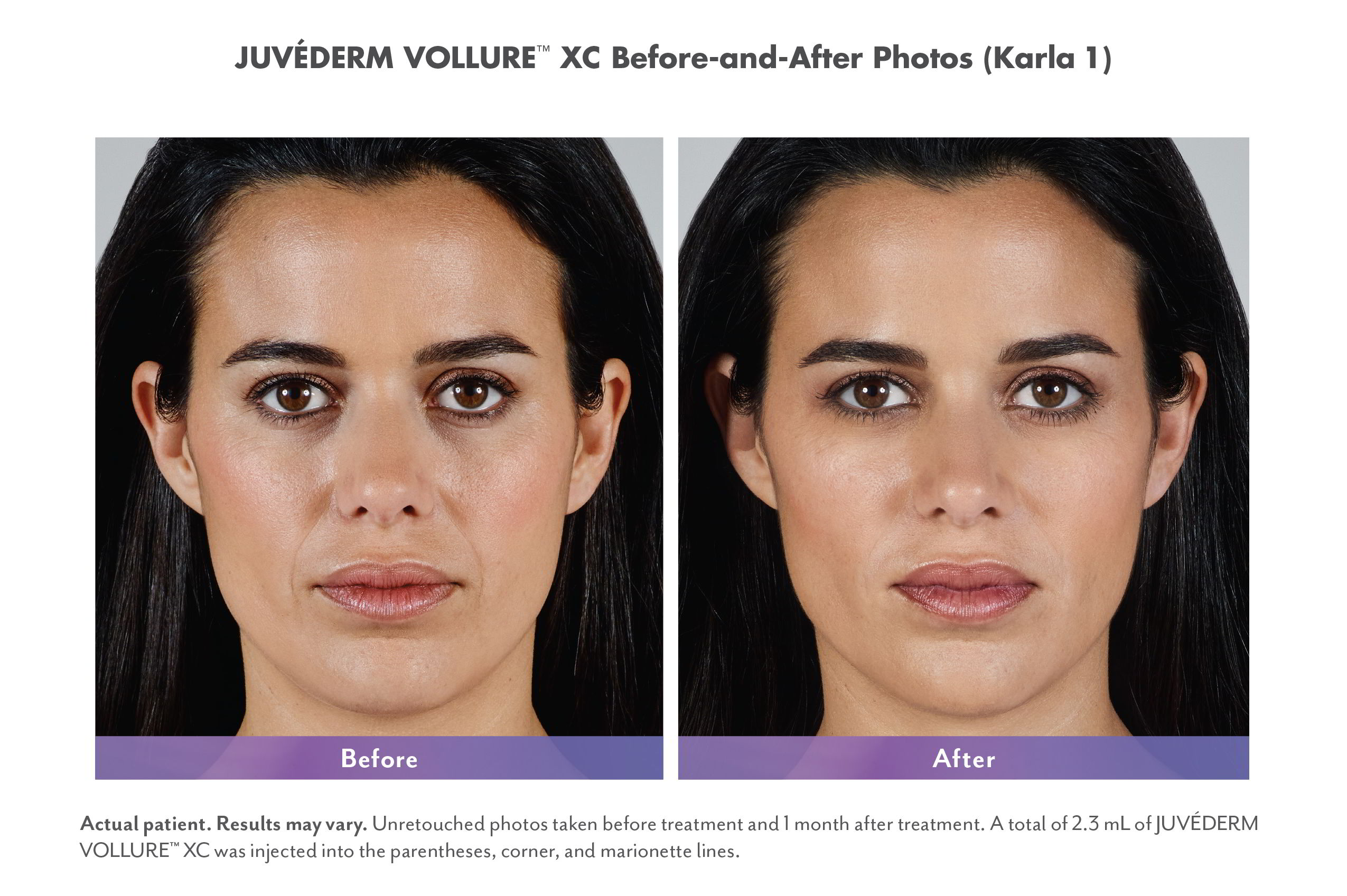 Juvederm Vollure XC Fillers Before & Afters