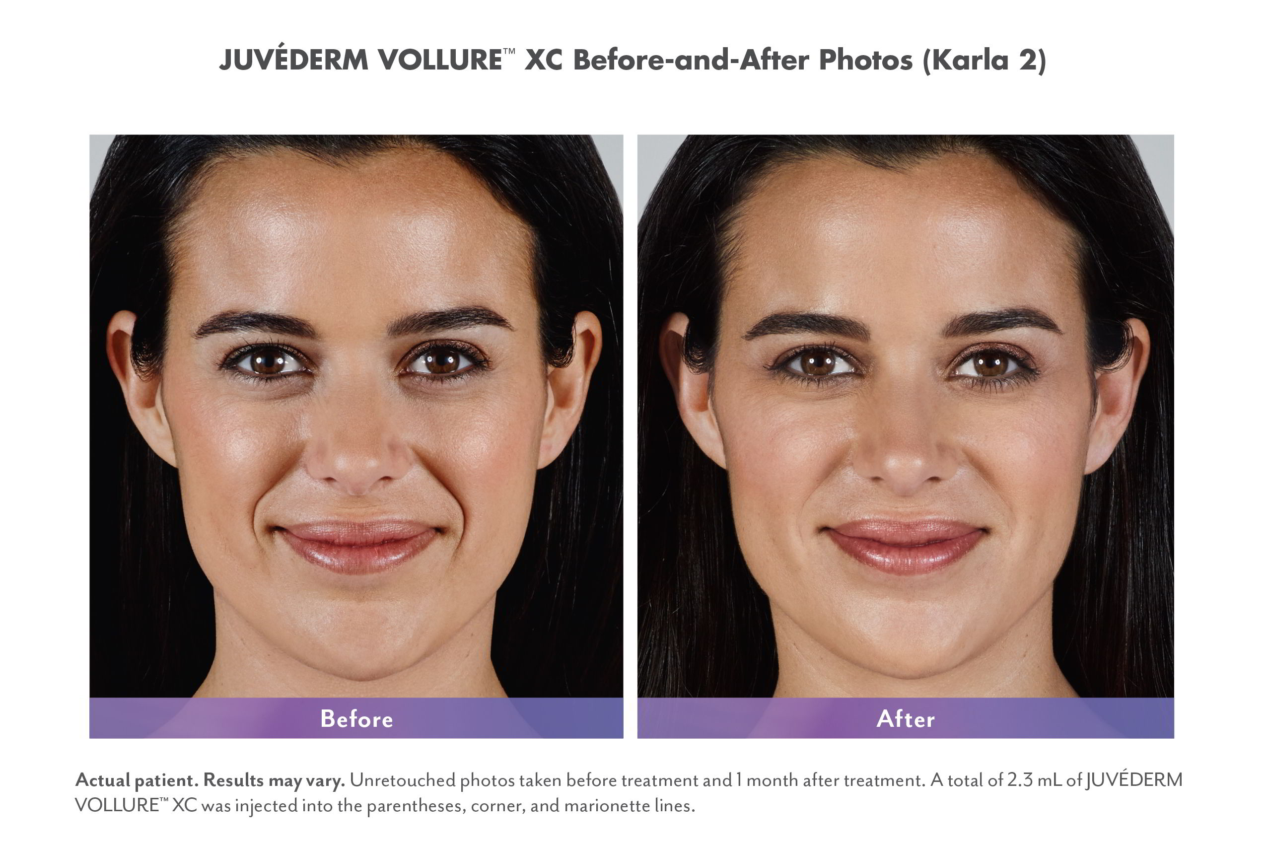Juvederm Vollure XC Injectable Fillers Before & Afters