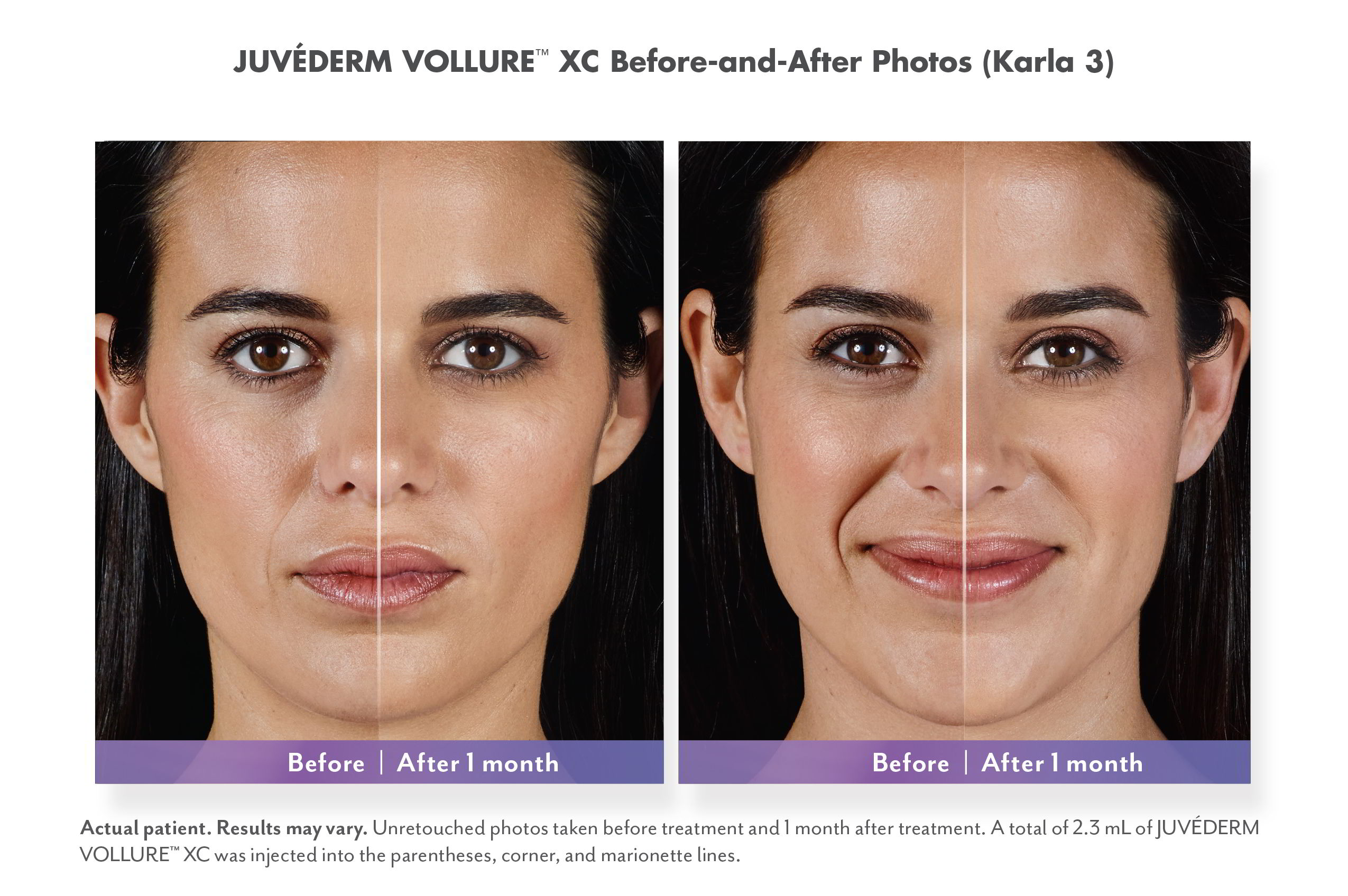 Juvederm Vollure XC Injectable Fillers