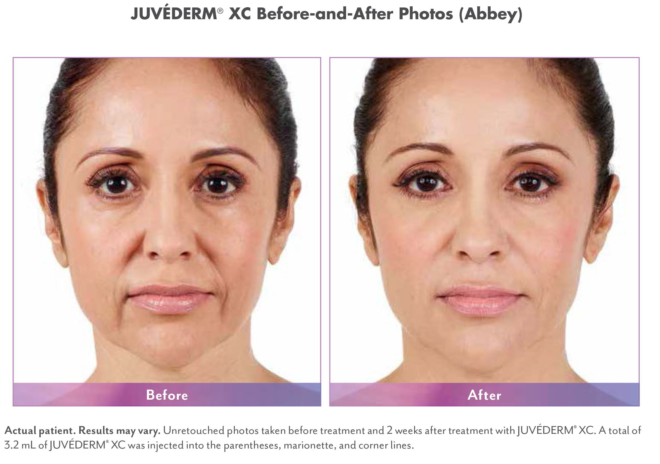 Juvederm XC Injectable Fillers Before & Afters