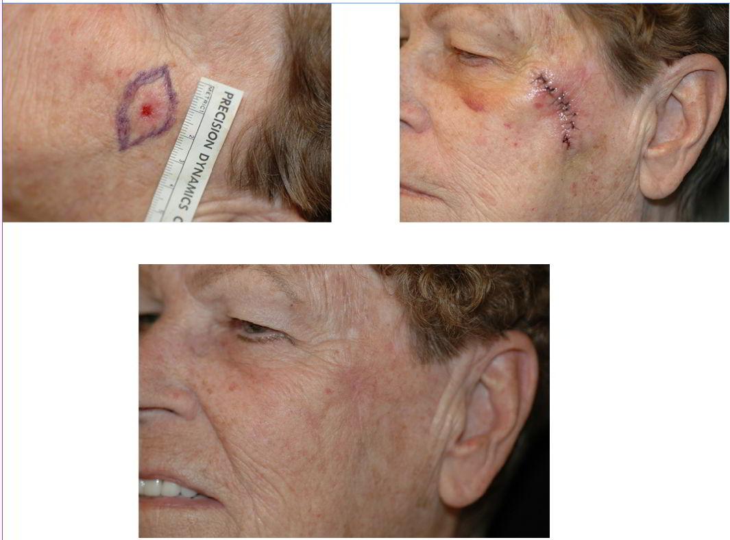 Facial Mole & Tag Removal La Quinta & Rancho Mirage Ca   La